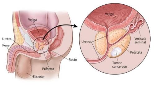 síntomas de próstata endurecidos